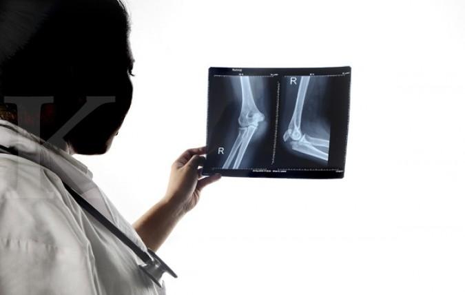 Awas, kebiasaan buruk ini timbulkan masalah tulang