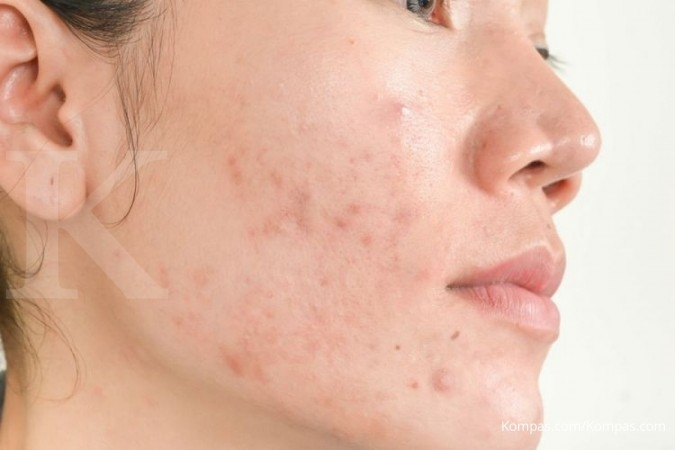 One of the benefits of vitamin E is removing acne scars.
